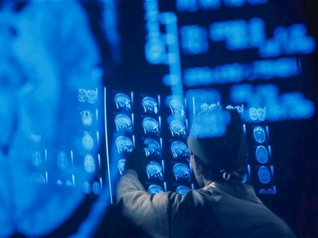 Patients will be monitored using MRI scans