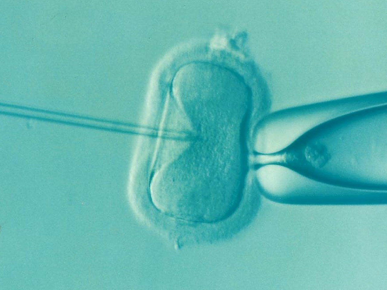 First to attempt to create genetically modified human embryos in the US